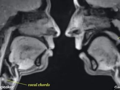 Video: Ako vyzerá vylučovanie, bozk, sex a mnoho iných činností cez magnetickú rezonanciu?